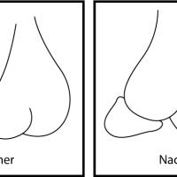 Beschneidung - Rettet die Vorhaut