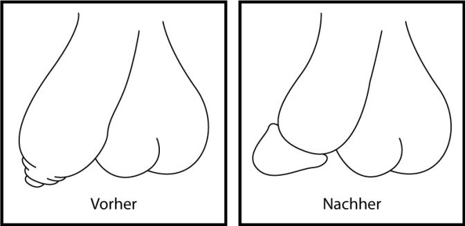 Beschneidung – Rettet die Vorhaut